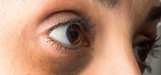 Occhiaie scure: come eliminarle grazie alla medicina estetica?